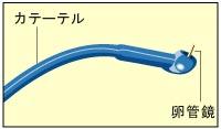 FT手術ステップ1