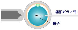 顕微授精の説明図