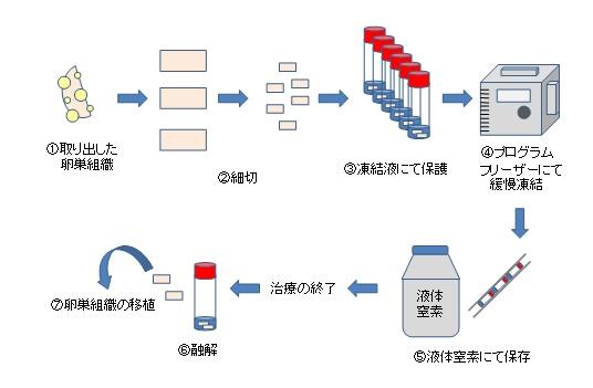 図1.卵巣凍結技術の流れ