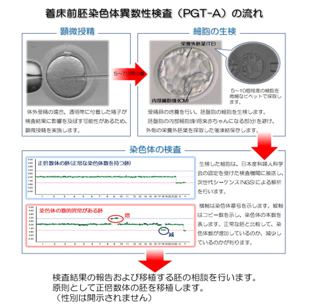 着床前胚染色体異数性検査(PGT-A)の流れ