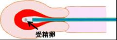 胚移植の説明図