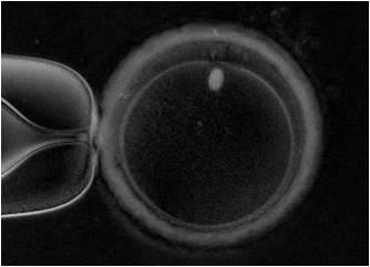 紡錘体観察装置で観察した成熟卵子
