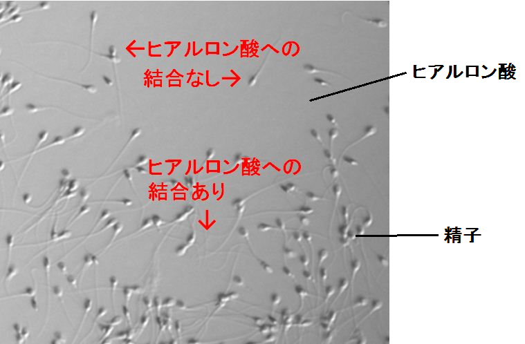 ヒアルロン酸培地での精子